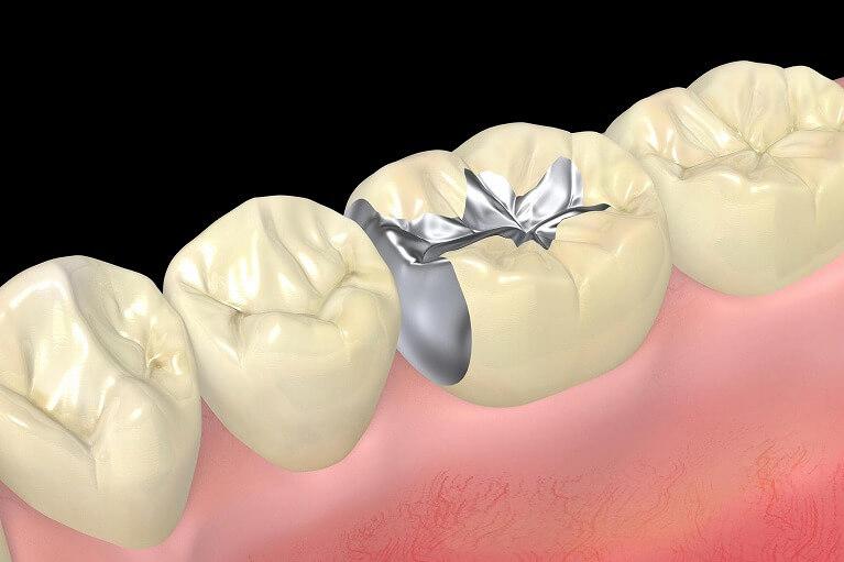 銀歯のメリット・デメリット