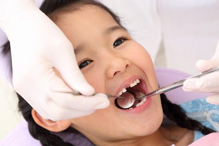 虫歯のチェック